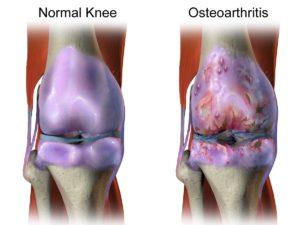 arthritis,joint pain,supplements,stiffness,treatment,osteoarthritis