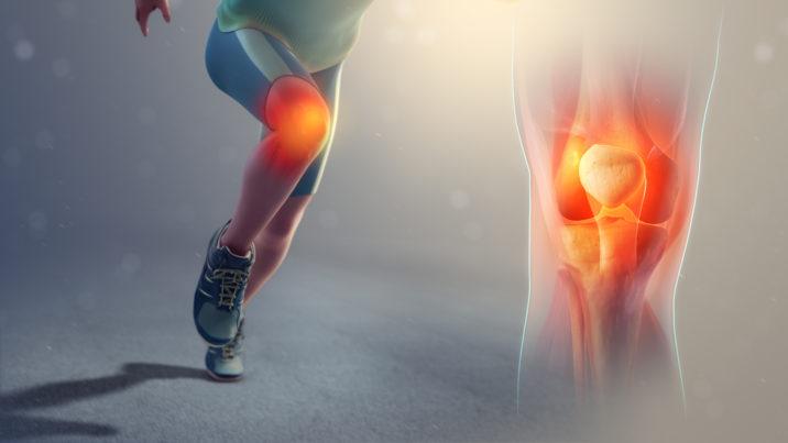 arthritis,joint pain,supplements,stiffness,treatment