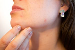Acne Causes and Treatment